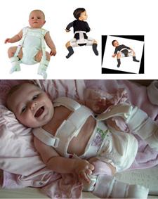 Μωράκια με δυσπλασία ισχίων που φορούν ειδικό θεραπευτικό νάρθηκα